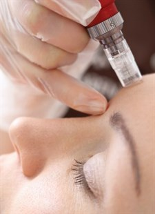 Microneedling (Fraxel Collagen Induction Therapy) Photo